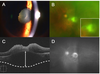 Morphological characteristics of ocular toxoplasmosis and its regression pattern on swept-source optical coherence tomography angiography: a case report