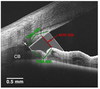Anterior segment optical coherence tomography imaging and ocular biometry in cataract patients with open angle glaucoma comorbidity