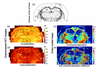 Optical coefficients as tools for increasing the optical coherence tomography contrast for normal brain visualization and glioblastoma detection