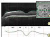 Enhanced Grid-Based Visual Analysis of Retinal Layer Thickness with Optical Coherence Tomography