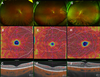 Macular Structure and Microvasculature Changes in AIDS-Related Cytomegalovirus Retinitis Using Optical Coherence Tomography Angiography