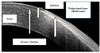 Morphometric evaluation and measurements of primary pterygium by anterior segment optical coherence tomography and its relation with astigmatism