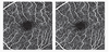 Reproducibility of Retinal Vascular Phenotypes Obtained with Optical Coherence Tomography Angiography: Importance of Vessel Segmentation