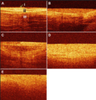 Phase II multi-center trial of optical coherence tomography as an adjunct to white light cystoscopy for intravesical real time imaging and staging of bladder cancer