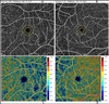 Optical Coherence Tomography Angiography Findings in Non-Infectious Posterior Uveitis: A Controlled Study