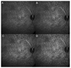 Correlation of choriocapillaris hemodynamic data from dynamic indocyanine green and optical coherence tomography angiography