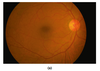 Optical Coherence Tomography Angiography of Nonarteritic Cilioretinal Artery Occlusion Alone