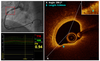 Identification of anatomic risk factors for acute coronary events by optical coherence tomography in patients with myocardial infarction and residual nonflow limiting lesions: rationale and design of the PECTUS-obs study