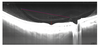 Swept Source Optical Coherence Tomography Assessment of Bursa Premacularis in Healthy Eyes