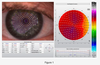 Current Developments in Corneal Topography and Tomography