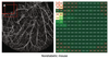 Deep learning differentiates between healthy and diabetic mouse ears from optical coherence tomography angiography images