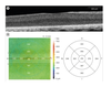 Assessment of the pigeon (Columba livia) retina with spectral domain optical coherence tomography
