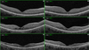 Visual loss secondary to fludarabine toxicity: optical coherence tomography findings in two patients
