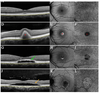 Stage-dependent choriocapillaris impairment in Best vitelliform macular dystrophy characterized by optical coherence tomography angiography