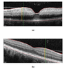 Determination of Ischemia Onset Based on Automatically Generated Spectralis SD-OCT Values in Acute Central Retinal Artery Occlusion