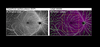 Effect of vessel enhancement filters on the repeatability of measurements obtained from widefield swept-source optical coherence tomography angiography