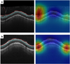 Detecting Retinal Nerve Fibre Layer Segmentation Errors on Spectral Domain-Optical Coherence Tomography with a Deep Learning Algorithm