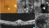 Features and Diagnostic Accuracy of Optical Coherence Tomography Angiography in Neovascular Age-related Macular Degeneration