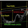 Primary Acute Angle-Closure Glaucoma: Three-Dimensional Reconstruction Imaging of Optic Nerve Heard Structure in Based on Optical Coherence Tomography (OCT)