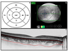 Choroidal thickness measured with swept source optical coherence tomography in posterior staphyloma strongly correlates with axial length and visual acuity