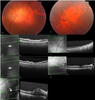 Spectral optical coherence tomography findings in an adult patient with syphilitic bilateral posterior uveitis and unilateral punctate inner retinitis