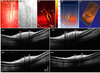 High-resolution multimodal photoacoustic microscopy and optical coherence tomography image-guided laser induced branch retinal vein occlusion in living rabbits