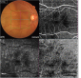 Lung adenocarcinoma choroidal metastasis studied by optical coherence tomography angiography
