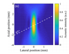 Spatial resolution in dynamic optical coherence elastography