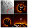 Assessing the Impact of Colchicine on Coronary Plaque Phenotype After Myocardial Infarction with Optical Coherence Tomography: Rationale and Design of the COCOMO-ACS Study