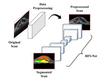 Deep learning based joint segmentation and characterization of multi-class retinal fluid lesions on OCT scans for clinical use in anti-VEGF therapy