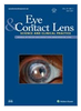 Changes in Limbal Optical Coherence Tomography Angiography Outcomes in Patients With Overnight Contact Lens Wear