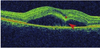 Baseline Predictive Factors of Visual Outcome and Persistence of Subretinal Fluid Based on Morphologic Changes in Spectral Domain Optical Coherence Tomography in Patients with Idiopathic Central Serous Chorioretinopathy
