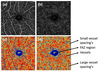 Optical coherence tomography angiography (OCTA) of retinal vasculature in patients with post fever retinitis: a qualitative and quantitative analysis