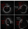 Optical Coherence Tomography Vulnerable Plaque Segmentation Based on Deep Residual U-Net