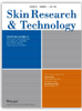 The efficacy and morphological effects of hydrogen peroxide 40% topical solution for the treatment of seborrheic keratoses, evaluated by dynamic optical coherence tomography