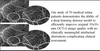 Clinical Utility of Artificial Intelligence Algorithms to Enhance Wide-Field Optical Coherence Tomography Angiography Images