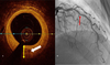 Association of Intimal Neovessels Noted by Optical Coherence Tomography with Cardiac Allograft ...