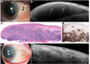 The use of high resolution anterior segment optical coherence tomography for the characterization of conjunctival lymphoma, conjunctival amyloidosis and benign reactive lymphoid hyperplasia
