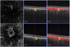 Time course of swept-source optical coherence tomography angiography findings after photodynamic therapy and aflibercept in eyes with age-related macular degeneration
