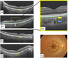Correlation of Aging and Segmental Choroidal Thickness Measurement using Swept Source Optical Coherence Tomography in Healthy Eyes