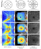 Optical coherence tomography angiography helps distinguish multiple sclerosis from AQP4-IgG-seropositive neuromyelitis optica spectrum disorder