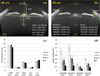 Full anterior segment biometry with extended imaging range spectral domain optical coherence tomography at 1340 nm