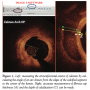 Predictors of Stent Strut Malapposition in Calcified Vessels Using Frequency-Domain Optical Coherence Tomography
