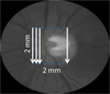 En face Doppler total retinal blood flow measurement with 70 kHz spectral optical coherence tomography