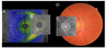 U-Shaped Effect of Blood Pressure on Structural OCT Metrics and Retinal Perfusion in Ophthalmologically Healthy Subjects