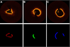 Coronary Plaque Characterization From Optical Coherence Tomography Imaging With a Two-Pathway Cascade Convolutional Neural Network Architecture