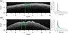 Learning curve and interobserver variance in quantification of the optical coherence tomography attenuation coefficient