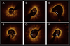 Association of Trimethylamine N-Oxide Levels and Calcification in Culprit Lesion Segments in Patients With ST-Segment–Elevation Myocardial Infarction Evaluated by Optical Coherence Tomography