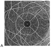 The role of pattern electroretinograms and optical coherence tomography angiography in the diagnosis of normal-tension glaucoma