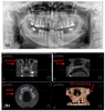 Optimization of X-ray Investigations in Dentistry Using Optical Coherence Tomography